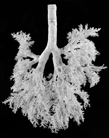 Bronchi and bronchioles of the human lungs